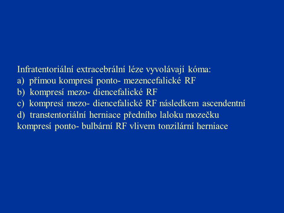 Infratentoriální extracebrální léze vyvolávají kóma: a) přímou kompresí ponto- mezencefalické RF b) kompresí mezo- diencefalické RF c) kompresí mezo-