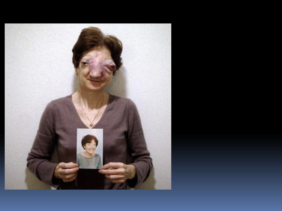 Argumenty proti eutanázii  právo na eutanázii neexistuje  Nevyléčitelně nemocná D.