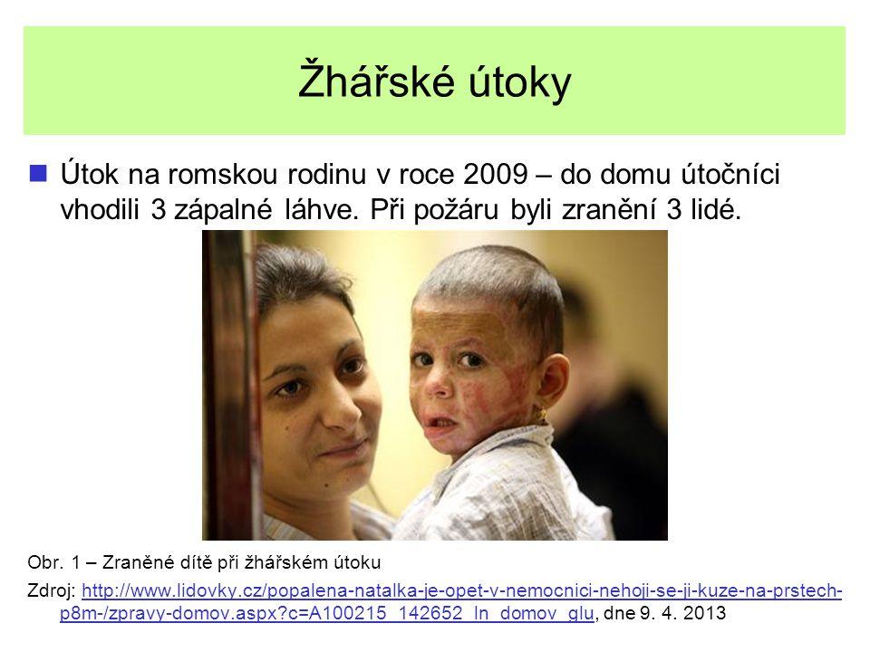 Žhářské útoky Útok na romskou rodinu v roce 2009 – do domu útočníci vhodili 3 zápalné láhve. Při požáru byli zranění 3 lidé. Obr. 1 – Zraněné dítě při