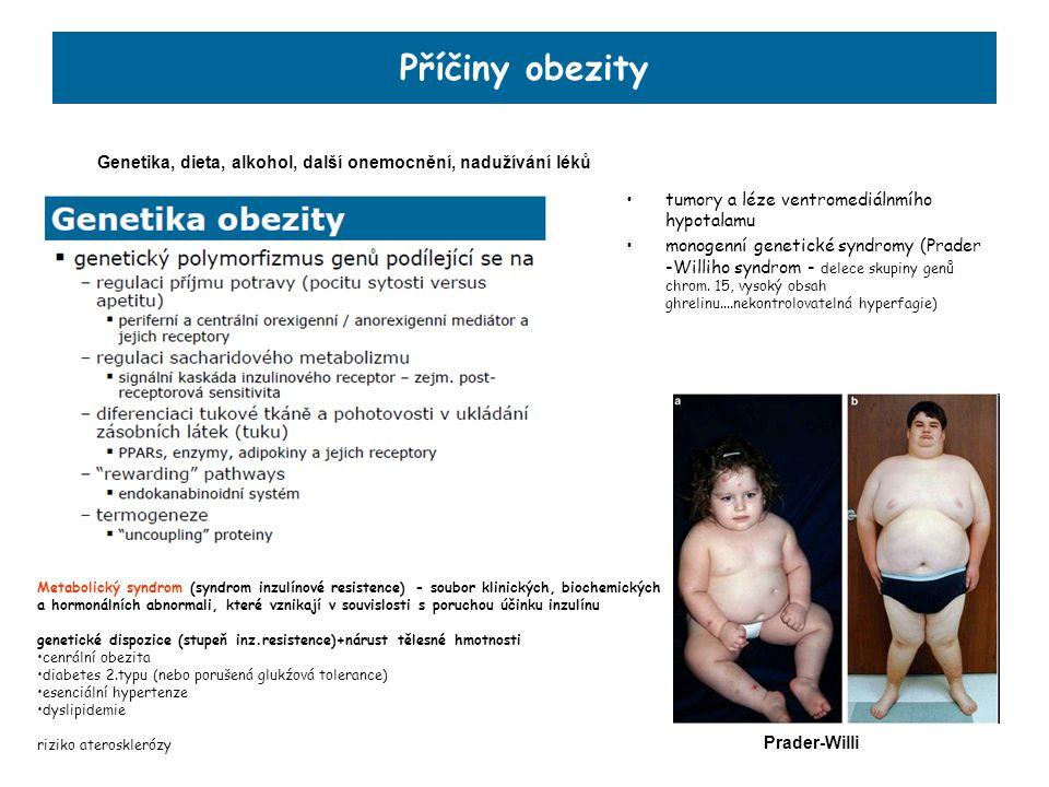 Příčiny obezity tumory a léze ventromediálnmího hypotalamu monogenní genetické syndromy (Prader -Williho syndrom - delece skupiny genů chrom. 15, vyso