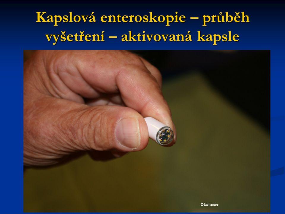 Kapslová enteroskopie – průběh vyšetření – aktivovaná kapsle Zdroj:autor