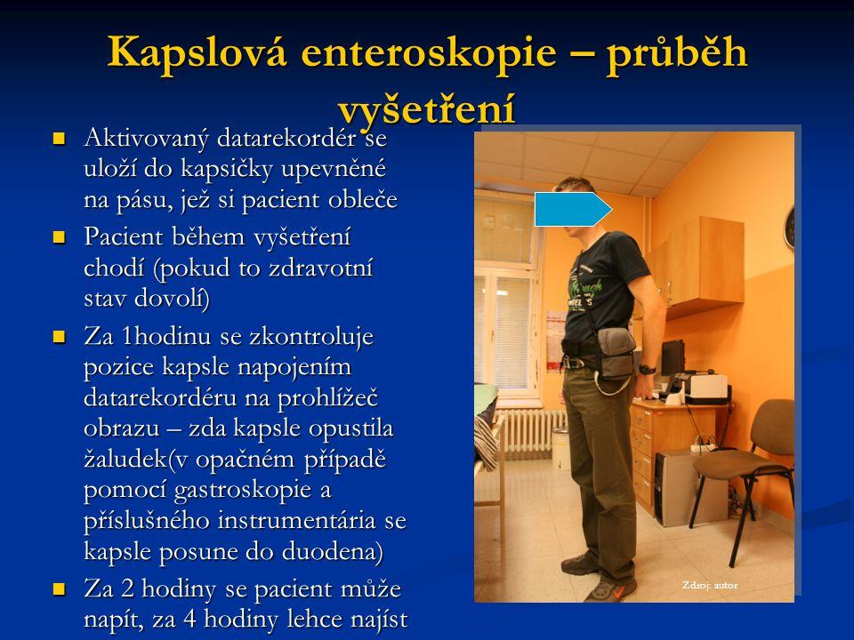 Kapslová enteroskopie – průběh vyšetření Aktivovaný datarekordér se uloží do kapsičky upevněné na pásu, jež si pacient obleče Aktivovaný datarekordér