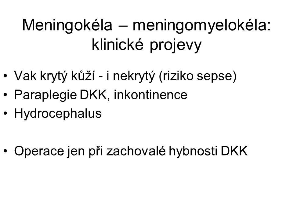 Meningokéla – meningomyelokéla: klinické projevy Vak krytý kůží - i nekrytý (riziko sepse) Paraplegie DKK, inkontinence Hydrocephalus Operace jen při zachovalé hybnosti DKK