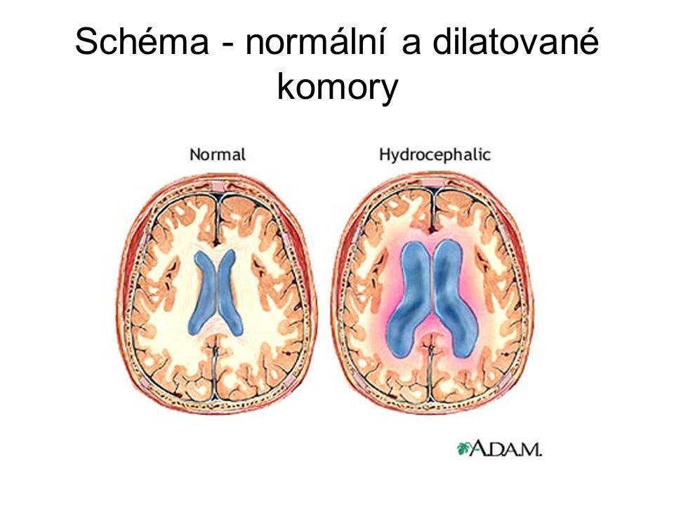 Schéma - normální a dilatované komory