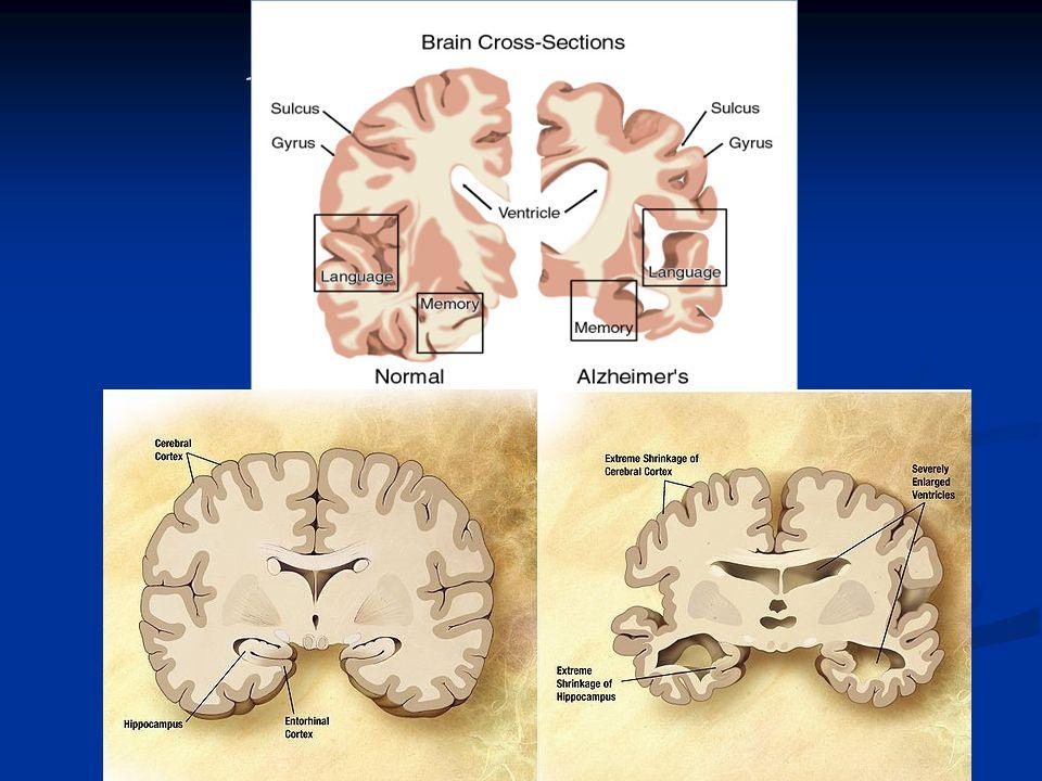 Alzheimerova choroba Klinické projevy