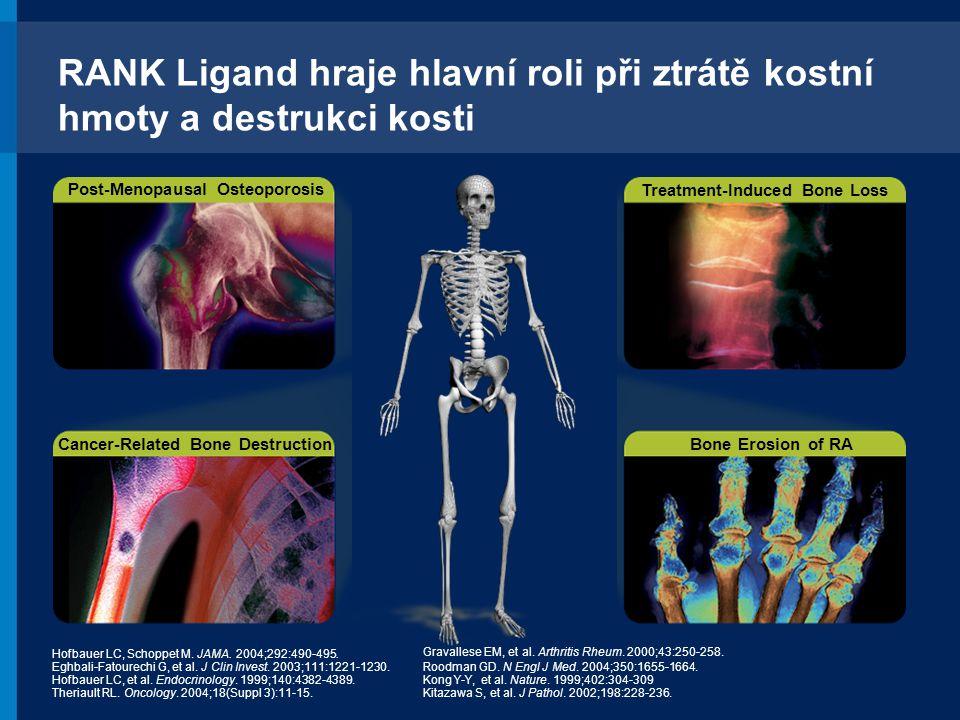 RANK Ligand hraje hlavní roli při ztrátě kostní hmoty a destrukci kosti Hofbauer LC, Schoppet M. JAMA. 2004;292:490-495. Eghbali-Fatourechi G, et al.