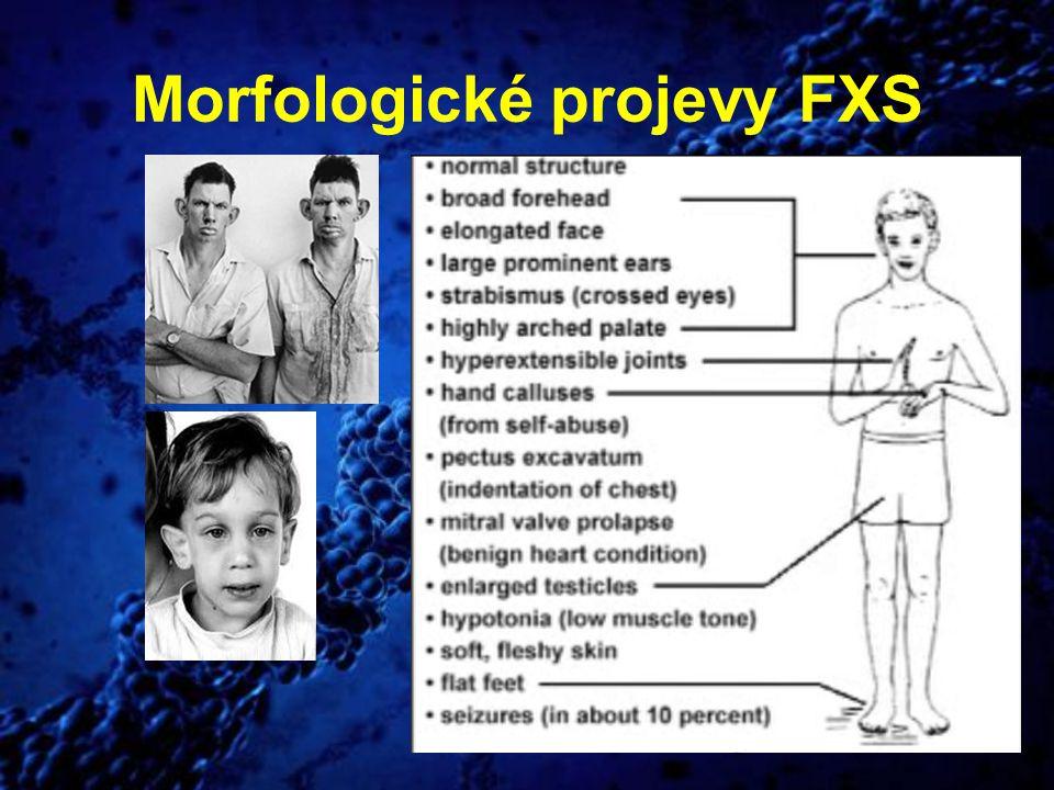 Morfologické projevy FXS