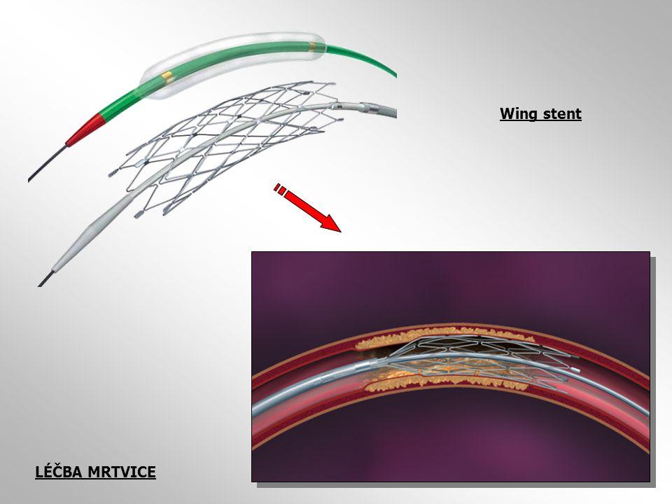 Wing stent LÉČBA MRTVICE