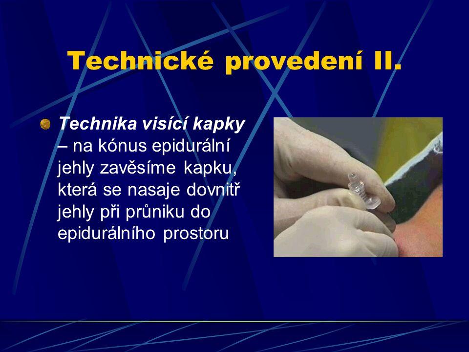 Technické provedení II. Technika visící kapky – na kónus epidurální jehly zavěsíme kapku, která se nasaje dovnitř jehly při průniku do epidurálního pr