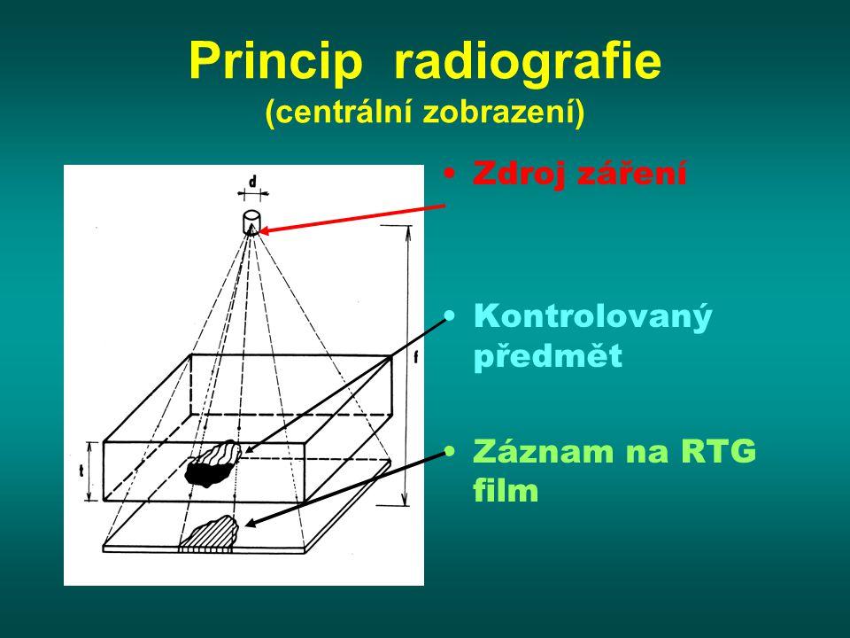 Princip radiografie (centrální zobrazení) Zdroj záření Kontrolovaný předmět Záznam na RTG film