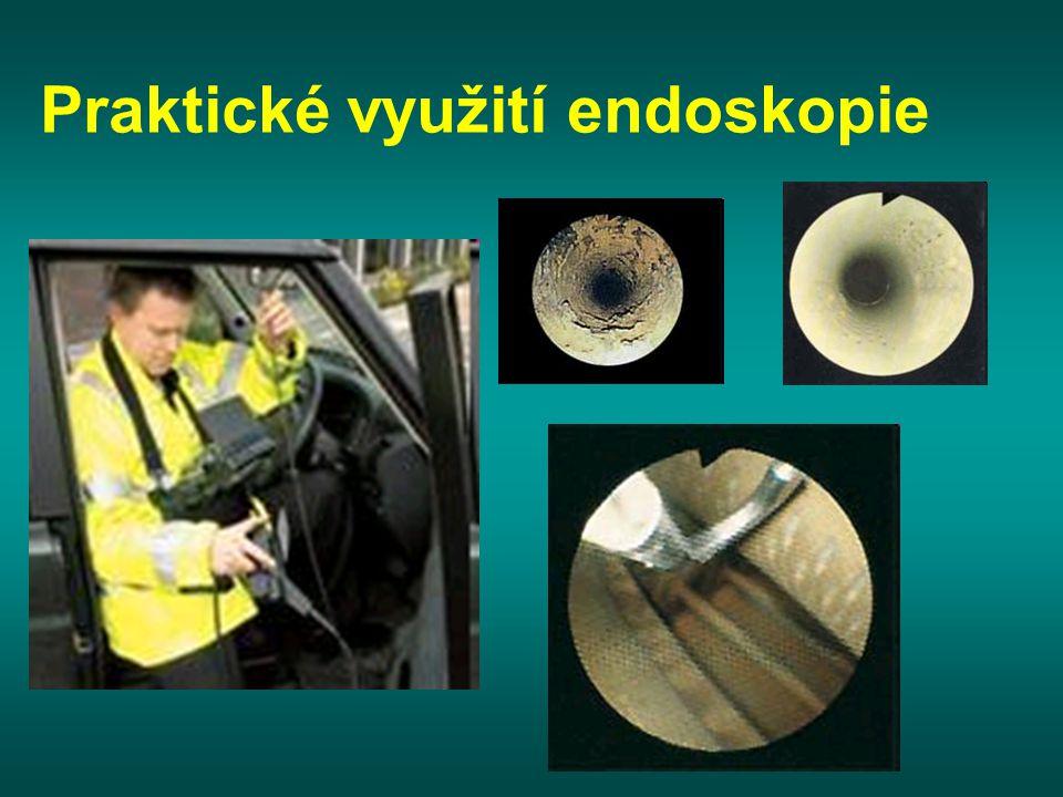 Praktické využití endoskopie