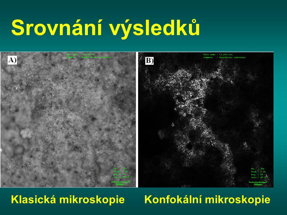 Srovnání výsledků Klasická mikroskopieKonfokální mikroskopie