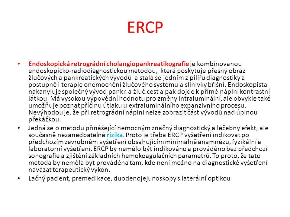 ERCP Endoskopická retrográdní cholangiopankreatikografie je kombinovanou endoskopicko-radiodiagnostickou metodou, která poskytuje přesný obraz žlučový