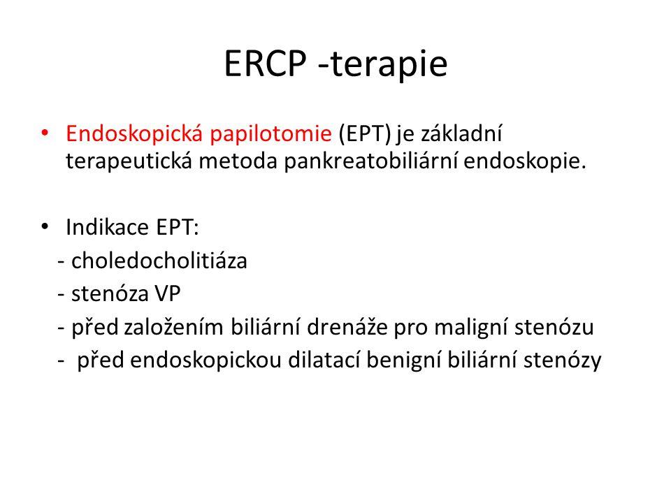 ERCP -terapie Endoskopická papilotomie (EPT) je základní terapeutická metoda pankreatobiliární endoskopie. Indikace EPT: - choledocholitiáza - stenóza