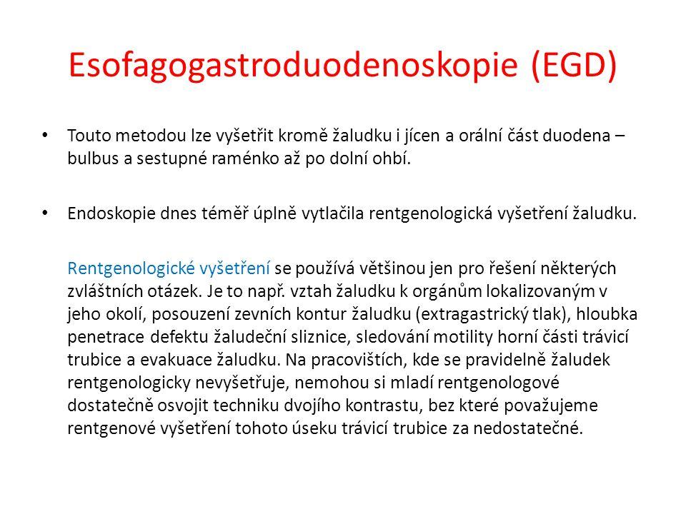 Esofagogastroduodenoskopie (EGD) Touto metodou lze vyšetřit kromě žaludku i jícen a orální část duodena – bulbus a sestupné raménko až po dolní ohbí.