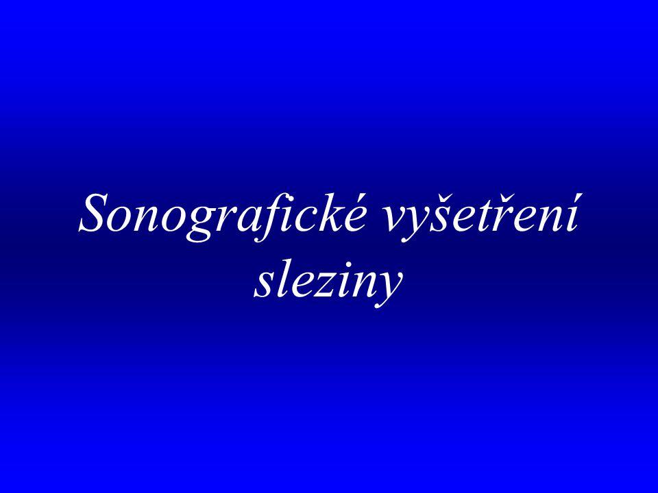 aa Sonografické vyšetření sleziny