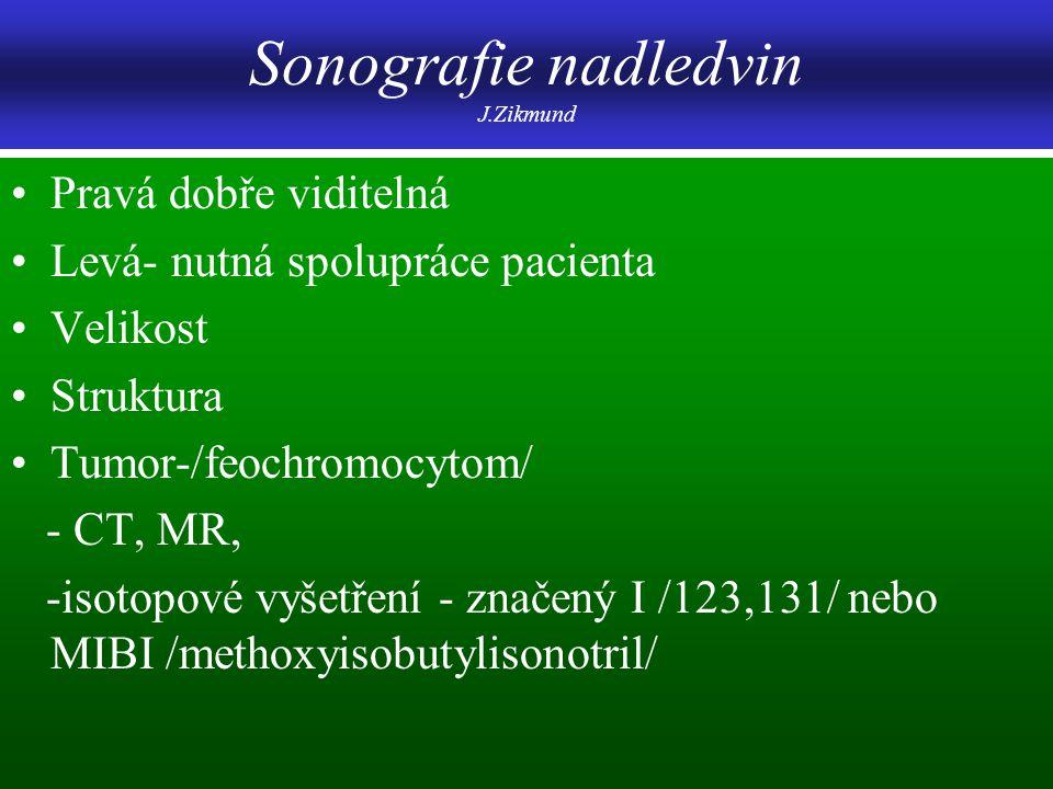 Sonografie nadledvin J.Zikmund Pravá dobře viditelná Levá- nutná spolupráce pacienta Velikost Struktura Tumor-/feochromocytom/ - CT, MR, -isotopové vy