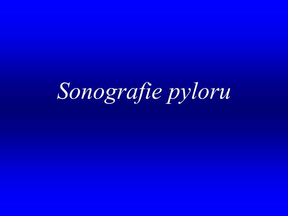 . Sonografie pyloru