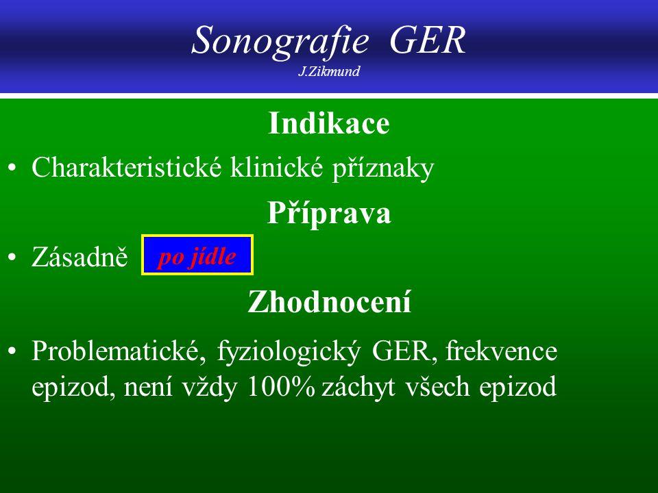 Sonografie GER J.Zikmund Indikace Charakteristické klinické příznaky Příprava Zásadně Zhodnocení Problematické, fyziologický GER, frekvence epizod, ne