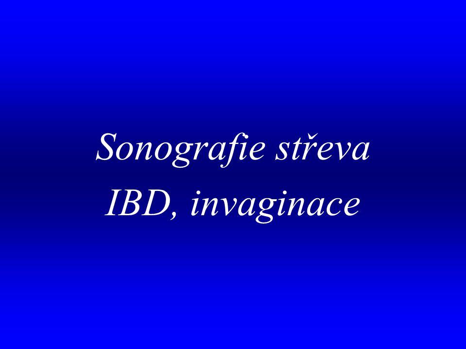 . Sonografie střeva IBD, invaginace