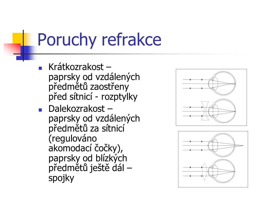 Poruchy refrakce Krátkozrakost – paprsky od vzdálených předmětů zaostřeny před sítnicí - rozptylky Dalekozrakost – paprsky od vzdálených předmětů za s
