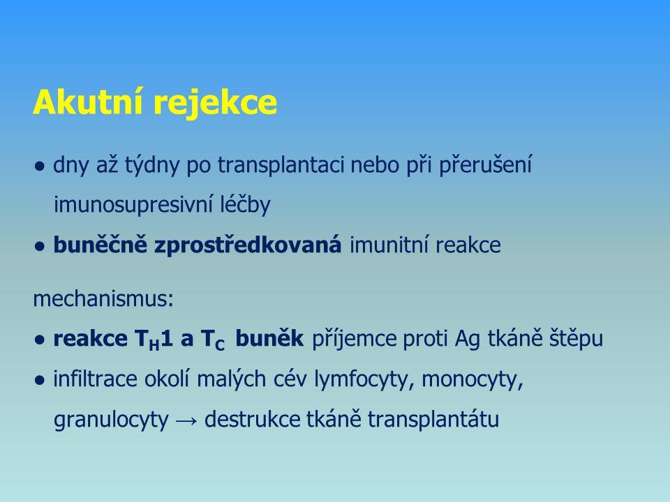 Akutní rejekce ● dny až týdny po transplantaci nebo při přerušení imunosupresivní léčby ● buněčně zprostředkovaná imunitní reakce mechanismus: ● reakc
