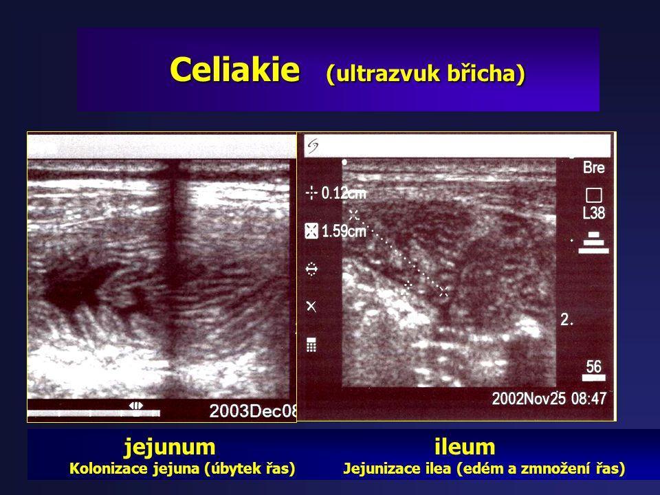 Diagnostika Diagnostika (ultrazvuk břicha) - žaludku: edém sliznice, peristaltika, hypersekrece, - tenké střevo: edém řas a stěny, hypersekrece, dysmo