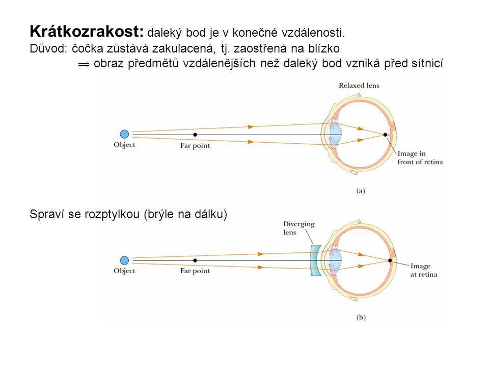 Krátkozrakost: daleký bod je v konečné vzdálenosti. Důvod: čočka zůstává zakulacená, tj. zaostřená na blízko  obraz předmětů vzdálenějších než daleký
