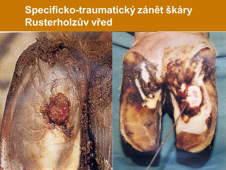 Specificko-traumatický zánět škáry Rusterholzův vřed