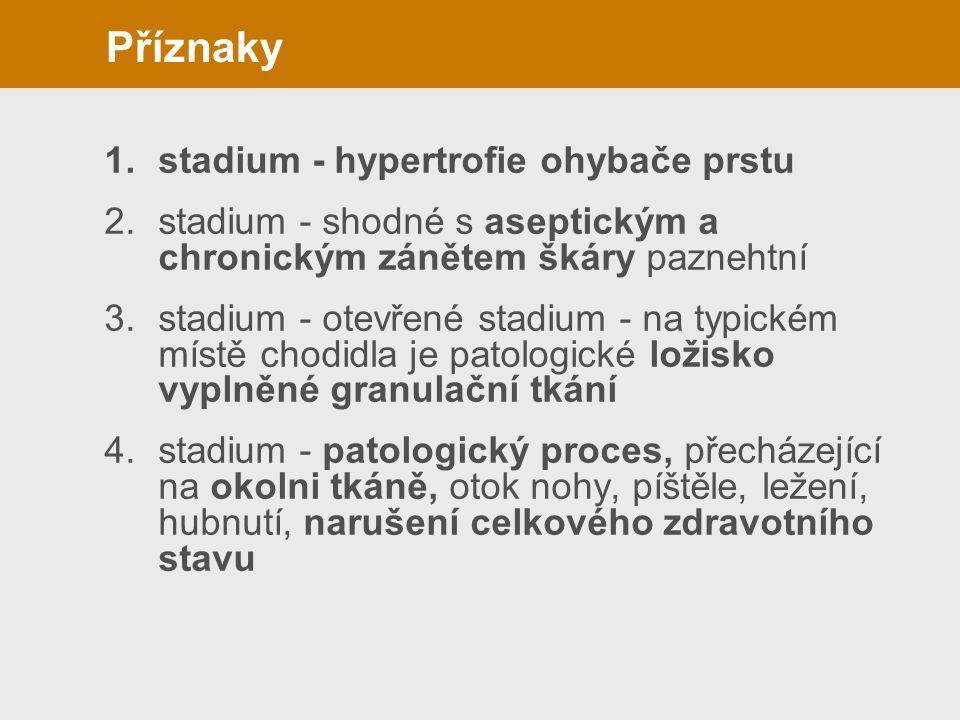 1.stadium - hypertrofie ohybače prstu 2.stadium - shodné s aseptickým a chronickým zánětem škáry paznehtní 3.stadium - otevřené stadium - na typickém