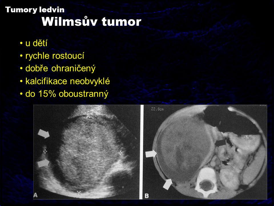 Tumory ledvin Wilmsův tumor u dětí rychle rostoucí dobře ohraničený kalcifikace neobvyklé do 15% oboustranný