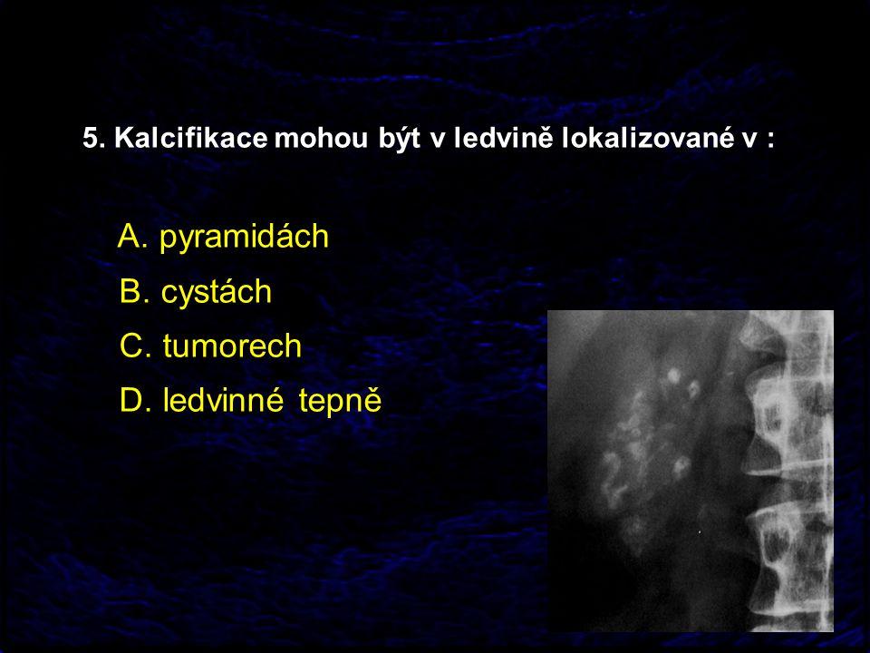 5. Kalcifikace mohou být v ledvině lokalizované v : A. pyramidách B. cystách C. tumorech D. ledvinné tepně
