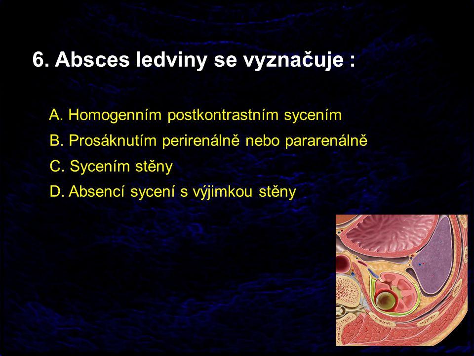 6. Absces ledviny se vyznačuje : A. Homogenním postkontrastním sycením B. Prosáknutím perirenálně nebo pararenálně C. Sycením stěny D. Absencí sycení