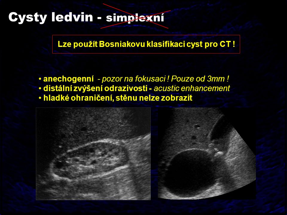 Cysty ledvin - simplexní anechogenní - pozor na fokusaci ! Pouze od 3mm ! distální zvýšení odrazivosti - acustic enhancement hladké ohraničení, stěnu
