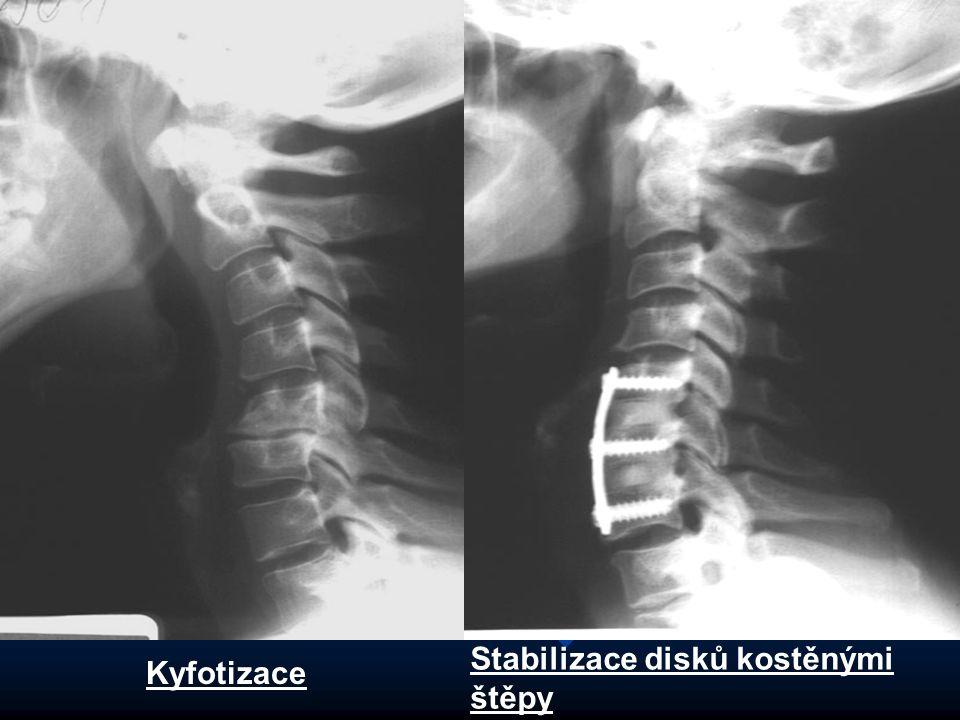 Kyfotizace Stabilizace disků kostěnými štěpy