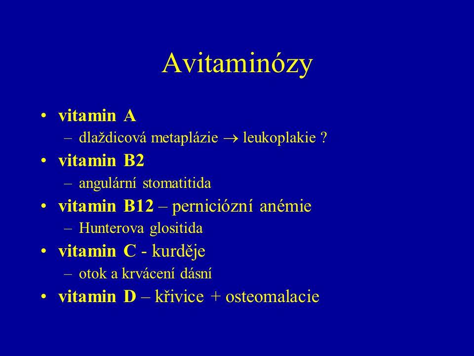 Avitaminózy vitamin A –dlaždicová metaplázie  leukoplakie .