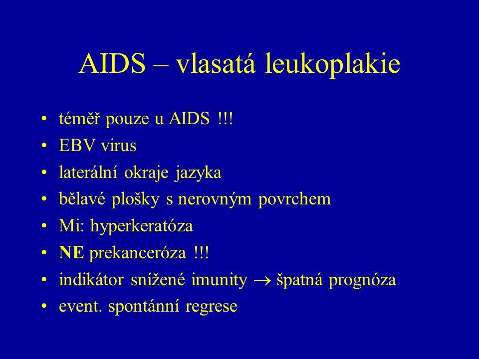 AIDS – vlasatá leukoplakie téměř pouze u AIDS !!.
