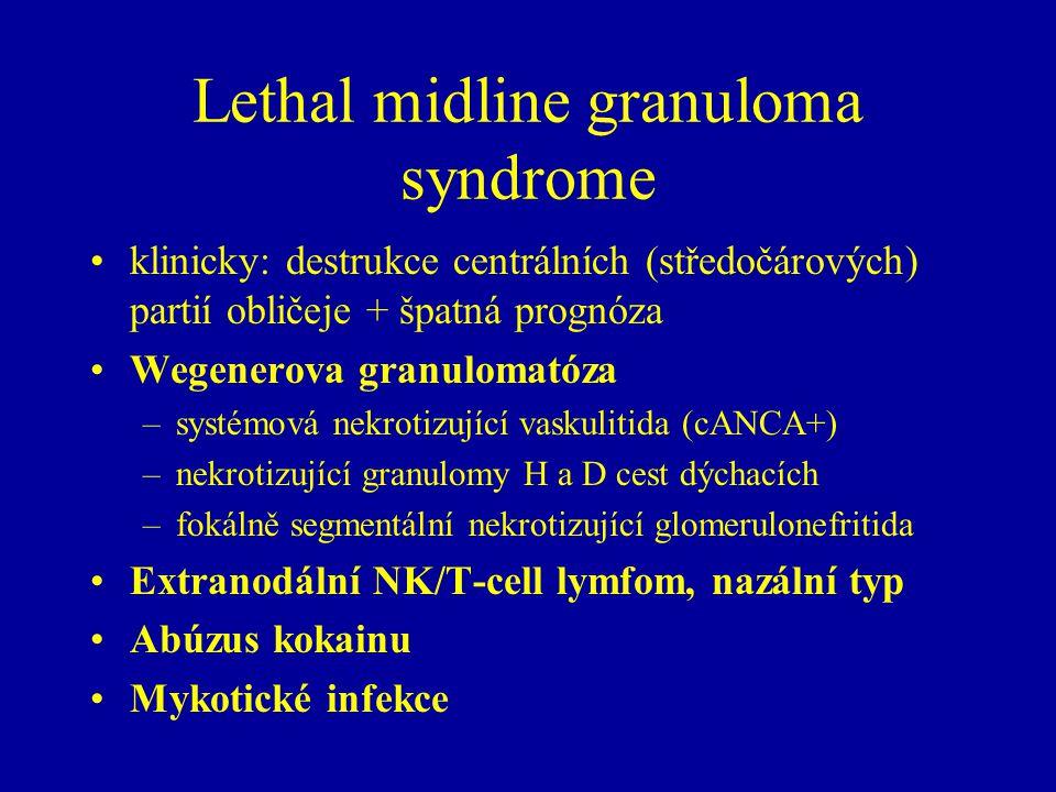 Lethal midline granuloma syndrome klinicky: destrukce centrálních (středočárových) partií obličeje + špatná prognóza Wegenerova granulomatóza –systémová nekrotizující vaskulitida (cANCA+) –nekrotizující granulomy H a D cest dýchacích –fokálně segmentální nekrotizující glomerulonefritida Extranodální NK/T-cell lymfom, nazální typ Abúzus kokainu Mykotické infekce