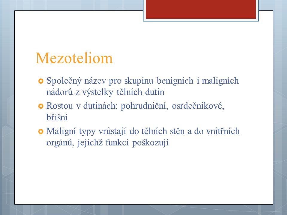 Mezoteliom  Společný název pro skupinu benigních i maligních nádorů z výstelky tělních dutin  Rostou v dutinách: pohrudniční, osrdečníkové, břišní 