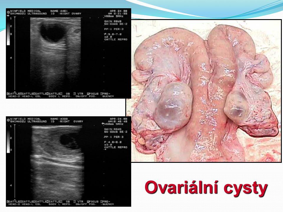 Ovariální cysty