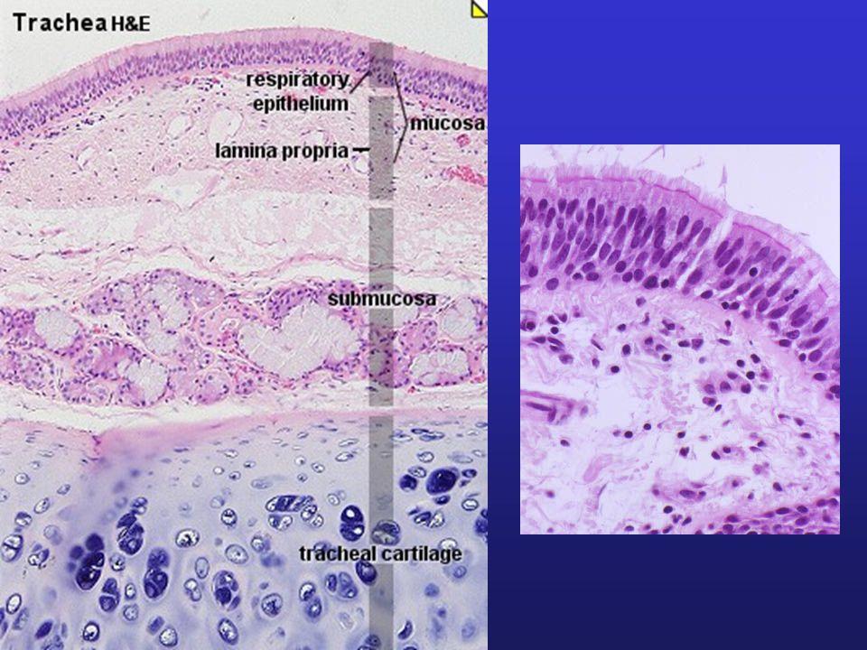 Bronchiektazie Ireverzibilní, ložisková dilatace průdušek, obvykle ve spojení s infekcí.