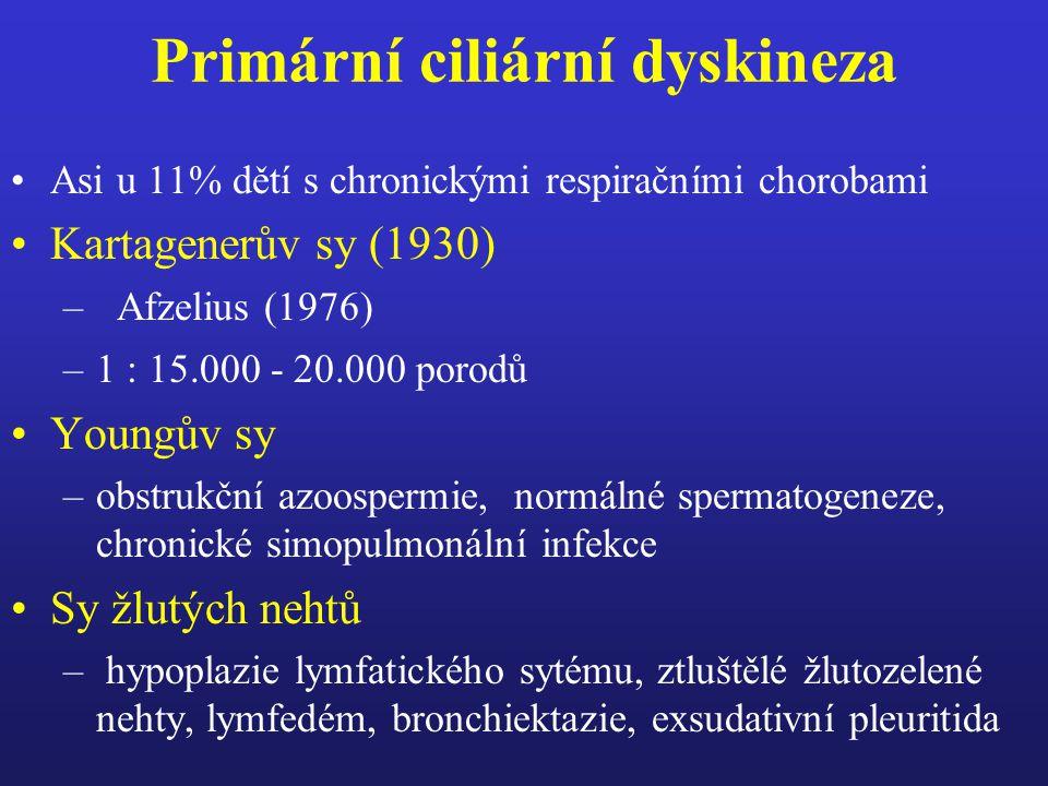 Diagnostická kriteria pro stanovení diagnózy bronchiálního astmatu u dětí v prvních letech života velká kriteria –3 a více epizod hvízdání v průběhu předchozích 6 měsíců –hospitalizace pro obstrukci dolních dýchacích cest –astma bronchiale u rodičů –atopická dermatitida