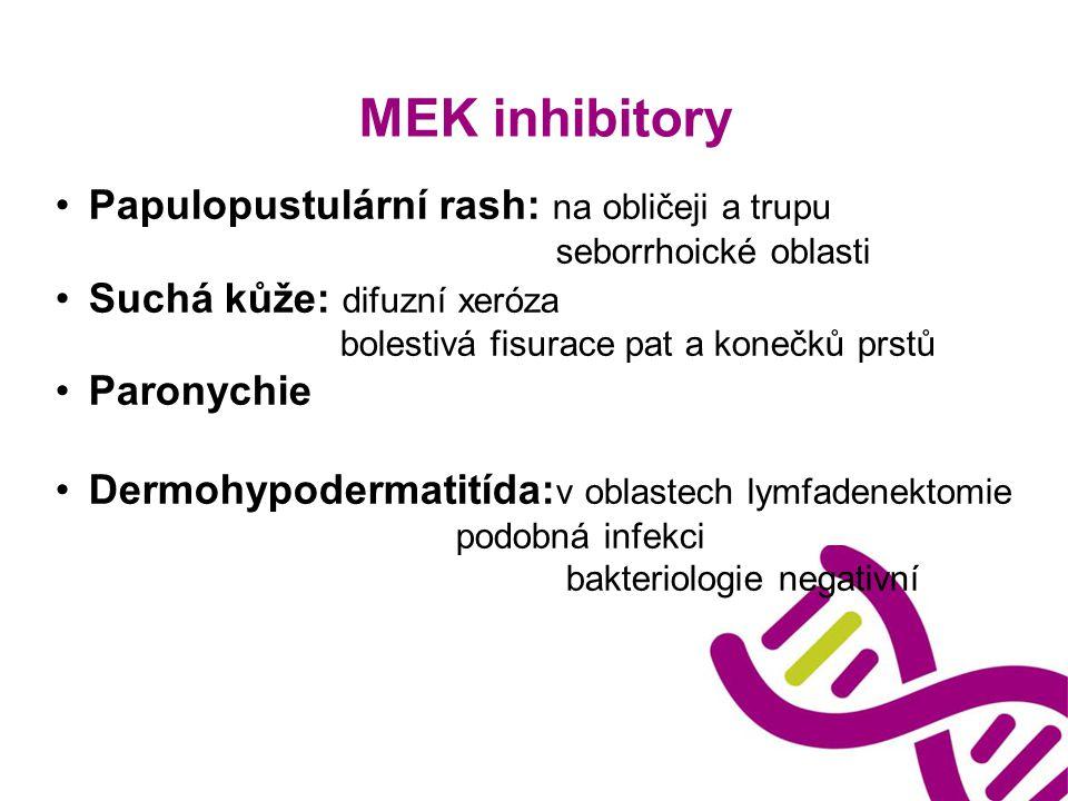 MEK inhibitory Papulopustulární rash: na obličeji a trupu seborrhoické oblasti Suchá kůže: difuzní xeróza bolestivá fisurace pat a konečků prstů Paron