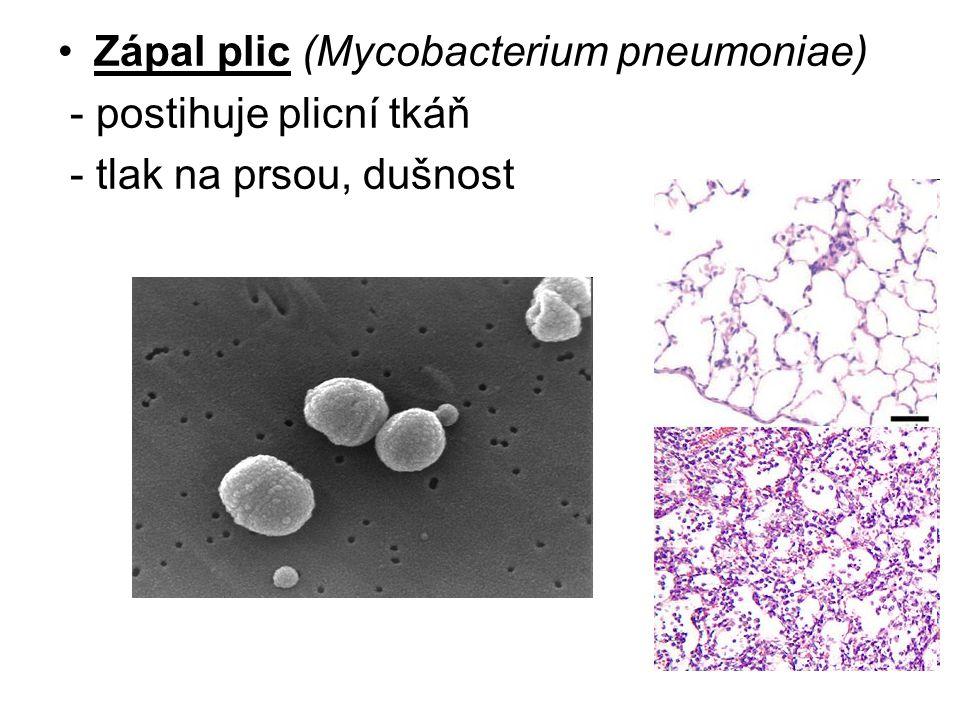 Zápal plic (Mycobacterium pneumoniae) - postihuje plicní tkáň - tlak na prsou, dušnost