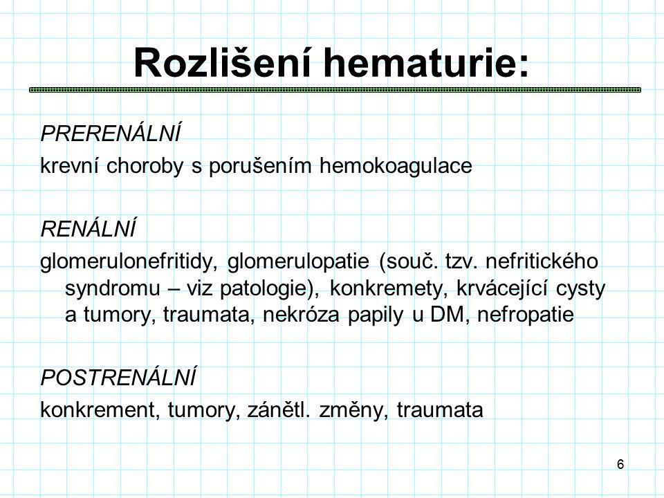 6 Rozlišení hematurie: PRERENÁLNÍ krevní choroby s porušením hemokoagulace RENÁLNÍ glomerulonefritidy, glomerulopatie (souč.