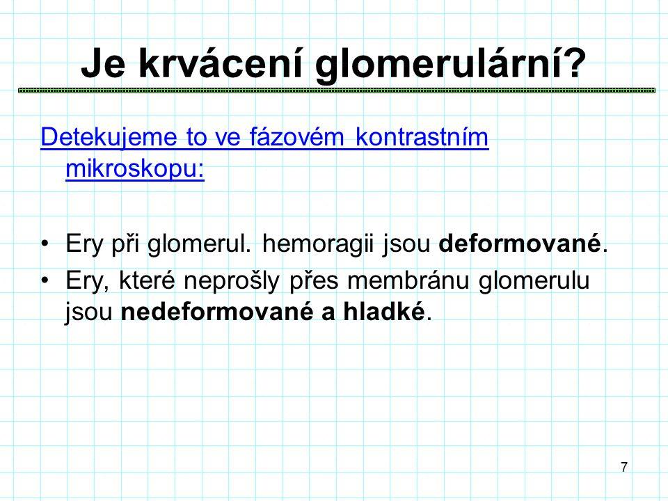 7 Je krvácení glomerulární. Detekujeme to ve fázovém kontrastním mikroskopu: Ery při glomerul.