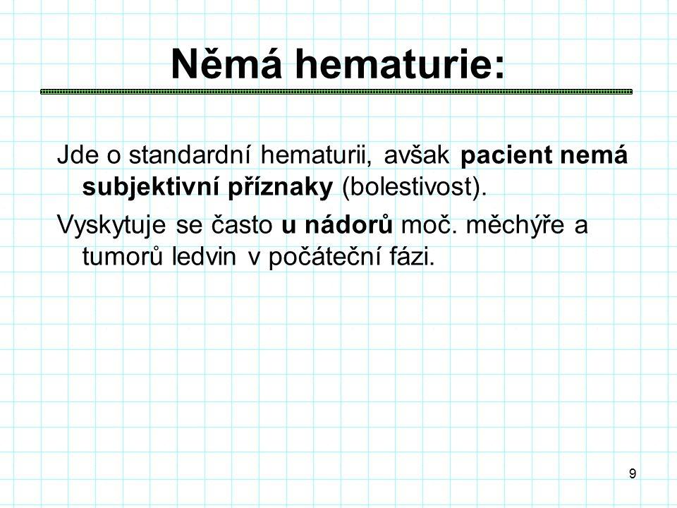9 Němá hematurie: Jde o standardní hematurii, avšak pacient nemá subjektivní příznaky (bolestivost).