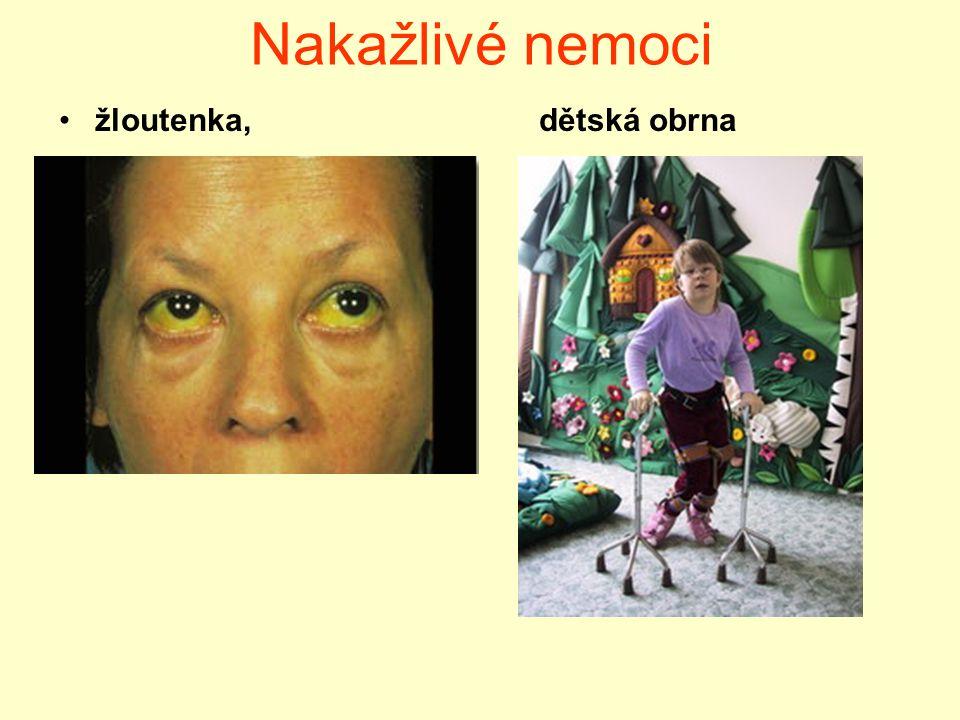 Nakažlivé nemoci žloutenka, dětská obrna