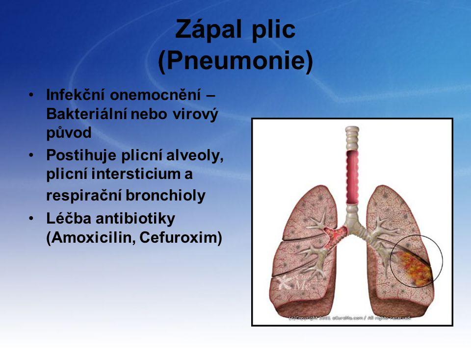 Zápal plic (Pneumonie) Infekční onemocnění – Bakteriální nebo virový původ Postihuje plicní alveoly, plicní intersticium a respirační bronchioly Léčba