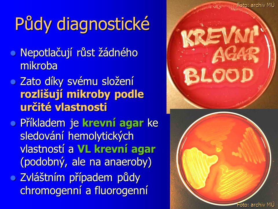 Půdy diagnostické Nepotlačují růst žádného mikroba Nepotlačují růst žádného mikroba Zato díky svému složení rozlišují mikroby podle určité vlastnosti Zato díky svému složení rozlišují mikroby podle určité vlastnosti Příkladem je krevní agar ke sledování hemolytických vlastností a VL krevní agar (podobný, ale na anaeroby) Příkladem je krevní agar ke sledování hemolytických vlastností a VL krevní agar (podobný, ale na anaeroby) Zvláštním případem půdy chromogenní a fluorogenní Zvláštním případem půdy chromogenní a fluorogenní Foto: archiv MÚ